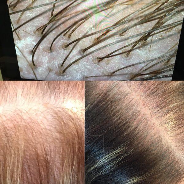 Medavita lotion concentree anti hair loss (Large)